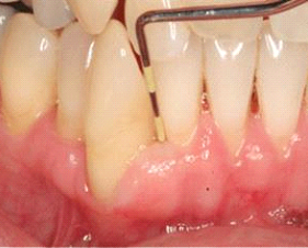 after laser periodontal treatment