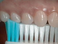 brushing the biting surfaces of your teeth