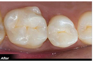 after composite fillings