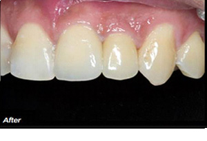 reshaped tooth after crown