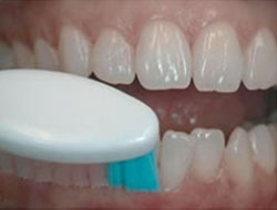 clean your teeth with a soft bristle brush